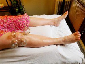 Santa Cruz Family Acupuncture - Cupping Knee