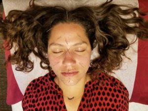 Santa Cruz Family Acupuncture Face Needles