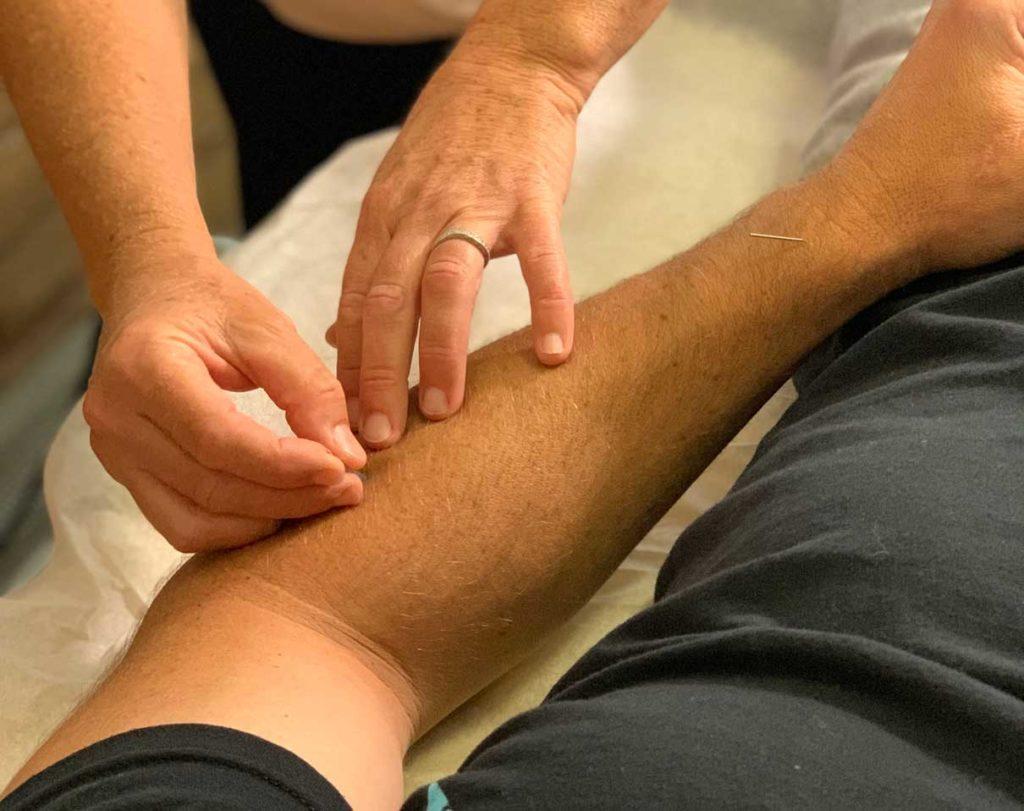 Santa Cruz Family Acupuncture Placing Needles in Arm