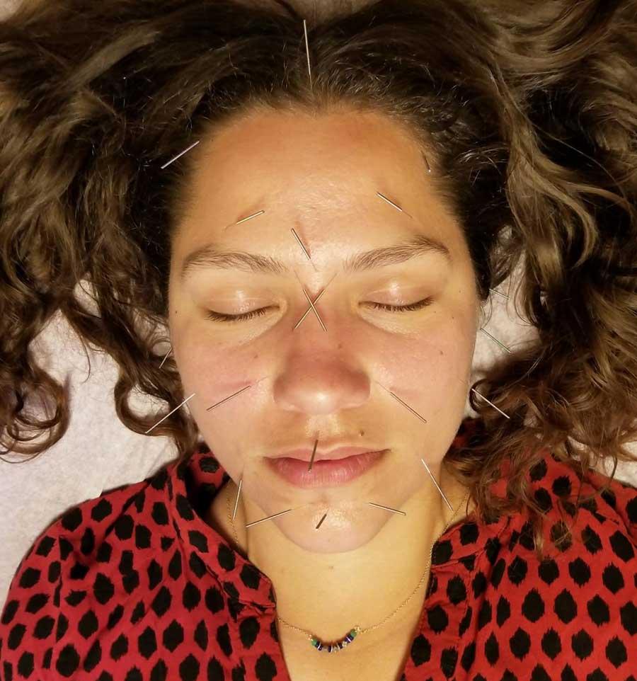 Santa Cruz Family Acupuncture Services Facial Rejuvenation