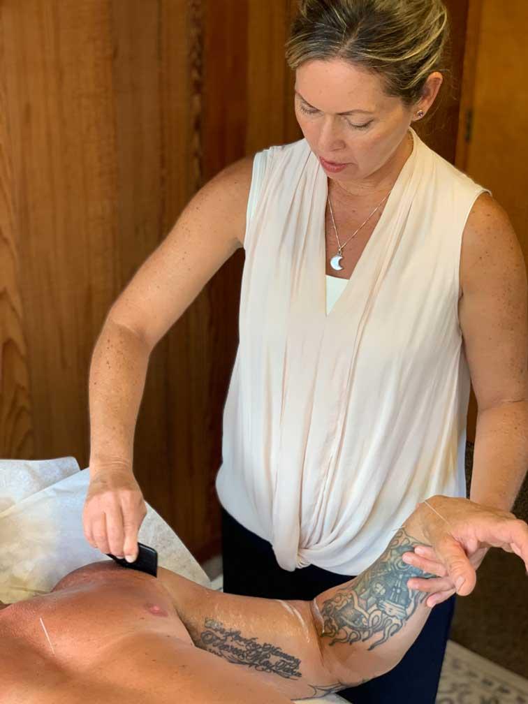 Santa Cruz Family Acupuncture Gua Sha Shoulder