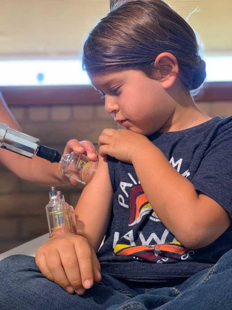 Santa Cruz Family Acupuncture Cupping Pediatric Patient
