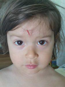 Santa Cruz Family Acupuncture - Pediatric Acupuncture
